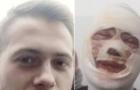 Суд відпустив нападника, який облив кислотою ужгородця, під домашній арешт