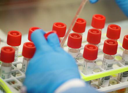 В Ужгороді за минулу добу виявлено 62 нові випадки коронавірусної інфекції