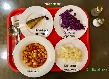 Як можна корисно харчуватися в кафе та буфетах - лікар-дієтолог із Закарпаття