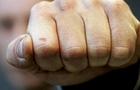 Поліція оприлюднила відео з агресивним чоловіком, який в Ужгороді кидався з кулаками на поліцейських