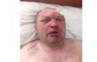 У Хустському районі поліція закриває очі на жорстоке побиття чоловіка?
