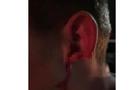 У Виноградові на дискотеці хлопцю відкусили вухо