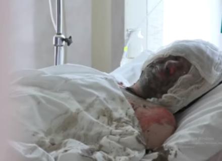Чоловік, який на Мукачівщині після весілля доньки підпалив себе, перебуває у вкрай важкому стані (ВІДЕО)
