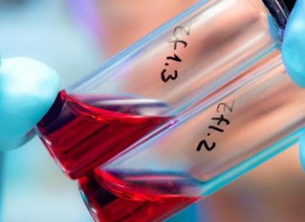 54% закарпатців у яких виявлено ВІЛ - заробітчани