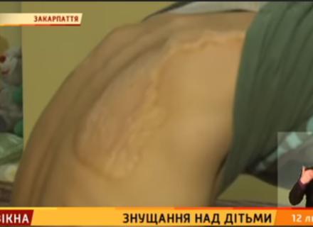 Ужгородські волонтери стверджують, що в прийомній родині гвалтують дітей. Соцслужби заперечують (ВІДЕО)